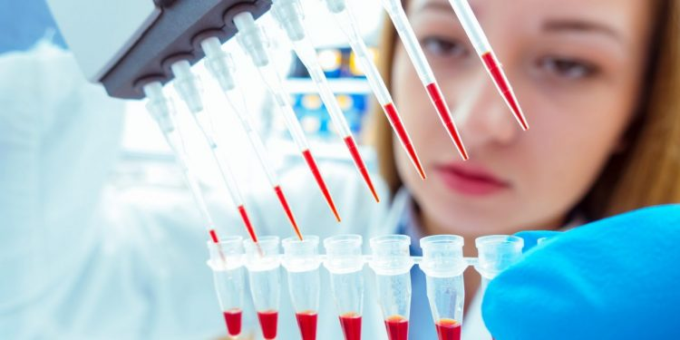 Νόσος Αλτσχάιμερ: Έγκαιρη διάγνωση με μια απλή εξέταση αίματος