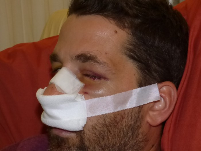 Πολύ σοβαρά χτυπημένος 37χρονος Χανιώτης από Βρετανούς στρατιώτες