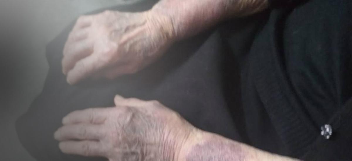 Τι έδειξε η νεκροψία για την άτυχη 88χρονη που πέθανε μετά τη ληστεία