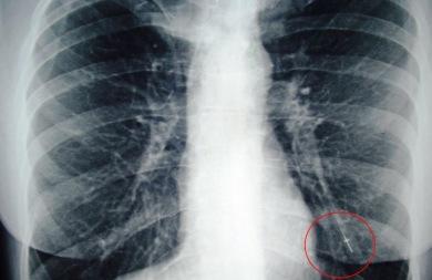 Αυξάνονται οι ασθενείς με καρκίνο του πνεύμονα το 2015